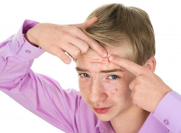 Как правильно лечить акне у подростков и взрослых и каковы причины высыпаний?