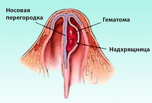 Как проявляется абсцесс носовой перегородки: симптомы и лечение
