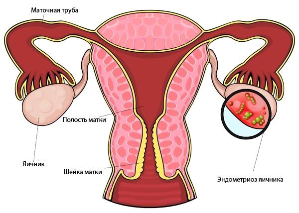 Как проявляется эндометриоз яичников: что это и как лечить?