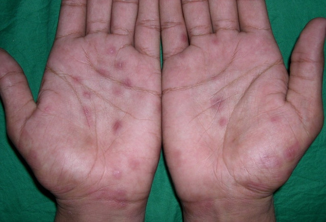Как проявляется сифилис у женщин: симптомы, первые признаки сифилиса у женщин