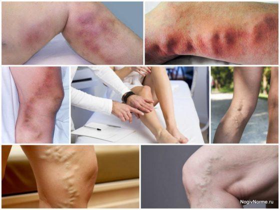 Как проявляется тромбоз и варикоз вен на ногах и руках, методы лечения заболеваний