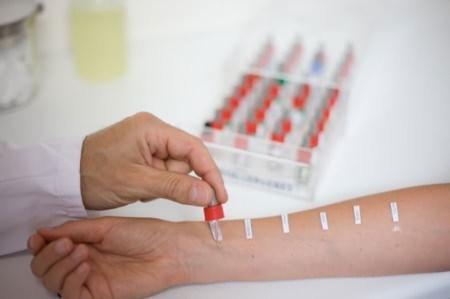 Как расшифровать результаты крови на имунноглобулин е?