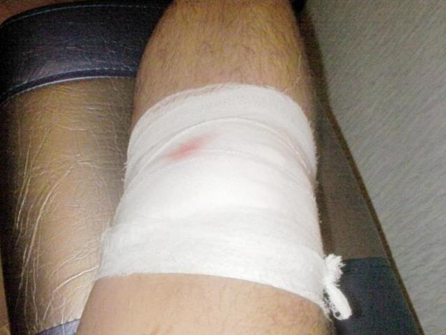 Как ускорить заживление раны на колене?