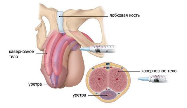 Как увеличить член гиалуроновой кислотой: воздействие инъекций, этапы процедуры, реабилитация