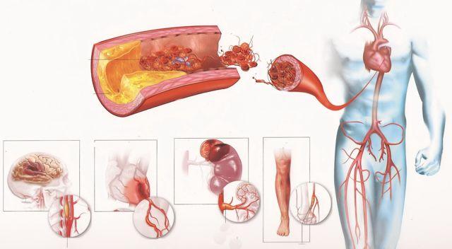 Как влияет на организм совместный прием инсулина и алкоголя: последствия одновременного приема