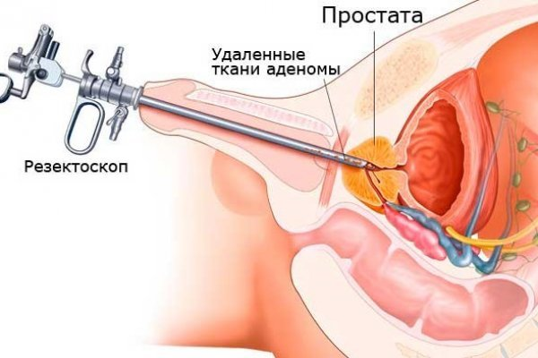 Реабилитация после удаления рака предстательной железы