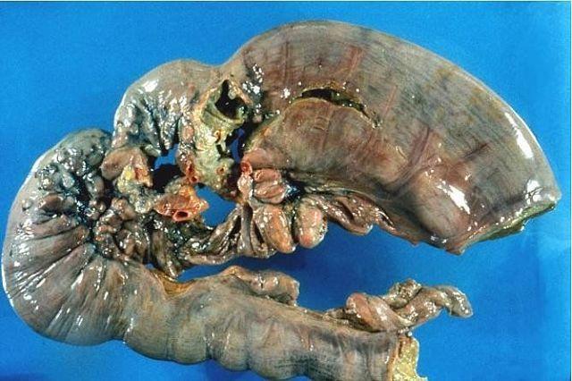 Как вылечить рак желудка на 4 стадии?