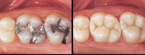 Какие пломбы лучше ставить на жевательные и передние зубы: сравнение пластмассовых и светоотверждаемых материалов