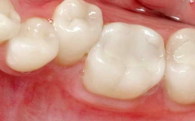 Какие считаются лучшими зубные пломбы: виды, преимущества и недостатки каждого
