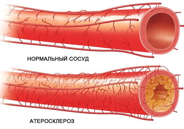 Какие травы чистят сосуды от холестерина и улучшают мозговое кровообращение: список, рекомендации к применению