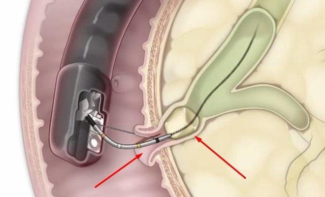 Камни поджелудочной железы: факторы риска возникновения, клиническая картина, методы обследования и лечения