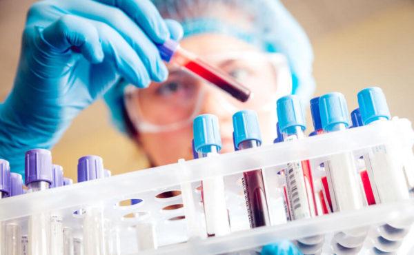 Канцероматоз брюшины при раке: что это такое, симптомы, причины канцероматоза брюшной полости, прогноз