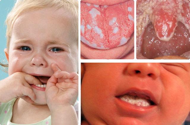 Кандидозный стоматит у детей и взрослых: причины возникновения заболевания, лечение, формы и симптомы