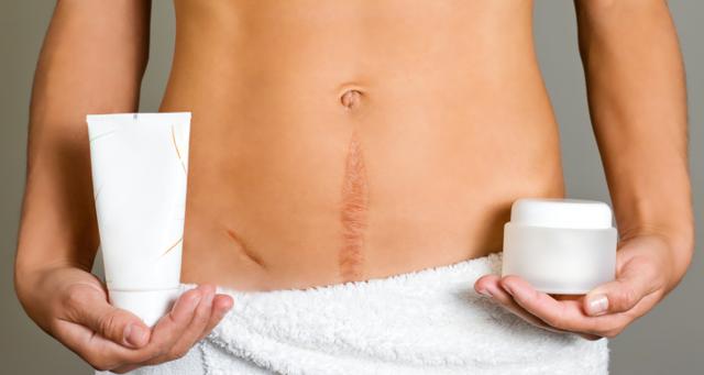 Келоидные рубцы: причины образований, методы лечения и удаления, способы профилактики