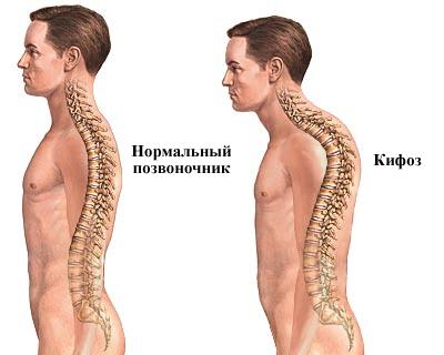 Кифоз позвоночника у взрослых: стадии развития, характерные проявления, лечебные мероприятия, полезные упражнения