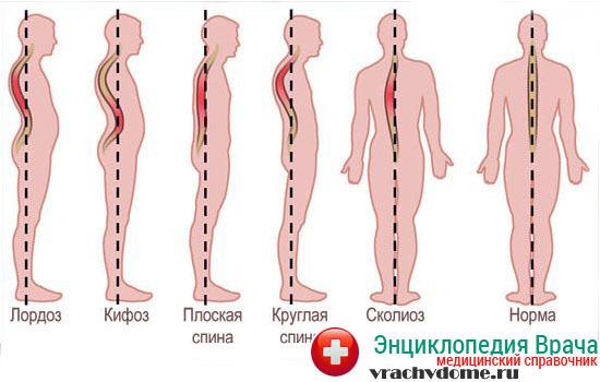 Кифоз у детей: как проявляется, что вызывает, диагностика