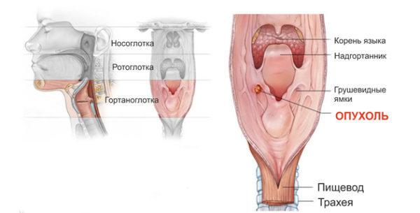 Киста гортани: классификация опухолей, причины возникновения, клинические симптомы