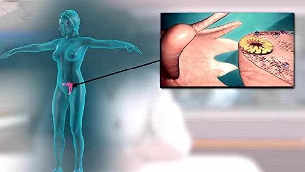 Киста яичника: первые признаки, способы диагностики и лечения