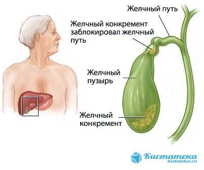 Киста желчного пузыря: причины образования, клинические признаки, диагностика и тактика лечения, возможные последствия