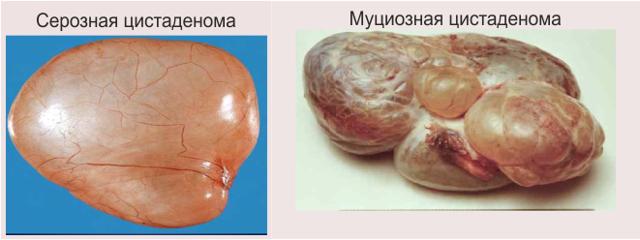 Кистома яичника: группы риска, клиническая картина, методы лечения и возможные осложнения