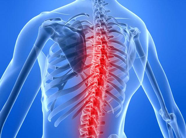 Клиновидные позвонки в грудном и поясничном отделение у детей и взрослых: клинические признаки илечение позвоночных аномалий