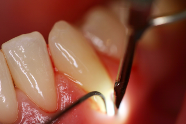 Клиновидный дефект зубов: откуда появляется проблема, симптомы и диагностика, методы лечения