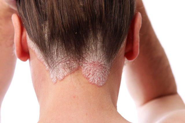 Кокцидиомикоз легких, костей, кожи: пути заражения, характерные проявления, принципы лечения и профилактика
