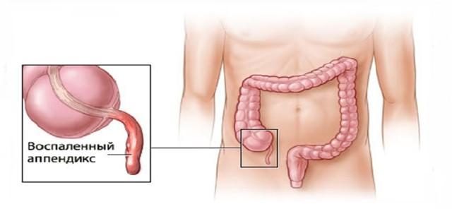 Колет в правом боку внизу живота у женщины, у мужчины: причины недуга, характеристика заболеваний, неотложная помощь