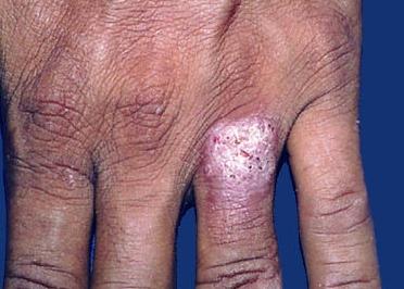 Колликвативный туберкулез кожи, скрофулодерма: что это и почему возникает, лечение и возможные осложнения