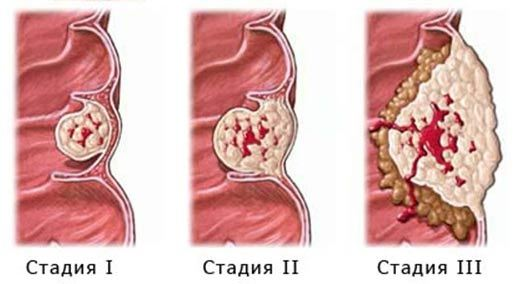 Колоректальный рак: причины и стадии развития, характерные симптомы, методы лечения и прогноз