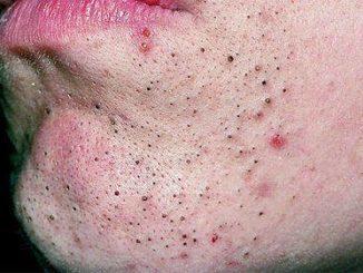 Комедоны на лице: виды, причины появления, способыудаления прыщей в домашних условиях