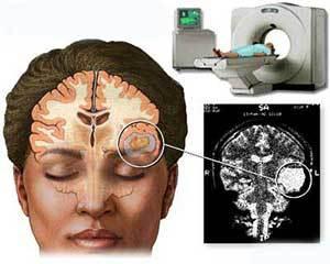 Компьютерная томография головного мозга: определение, показания и противопоказания, разновидности.