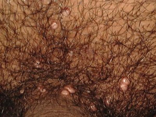 Контагиозный моллюск: фото, симптомы, лечение в клинике и домашних условиях