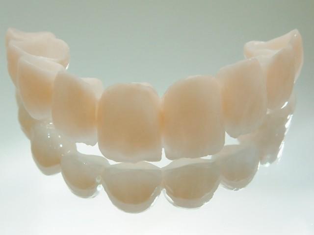 Коронки на зубы: разновидности протезов, их плюсы и минусы, подготовка к установке, проведение процедуры