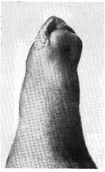 Костный панариций большого пальца кисти: причины возникновения, симптомы и методы лечения с подробными фото