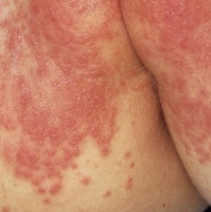 Кремы и мази под подгузник ребенку, средства для лечения пеленочного дерматита