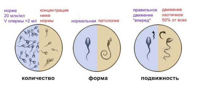 Криптоспермия: провоцирующие факторы, характерные признаки, диагностика и особенности лечения