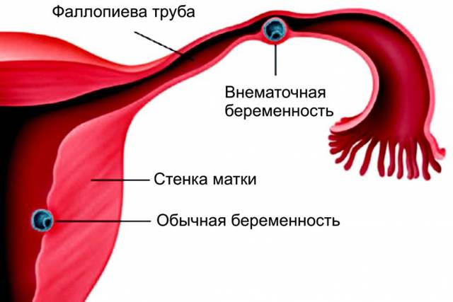 Кровотечение на раннем сроке беременности — что делать: первая помощь и лечение кровотечений в первой половине беременности.