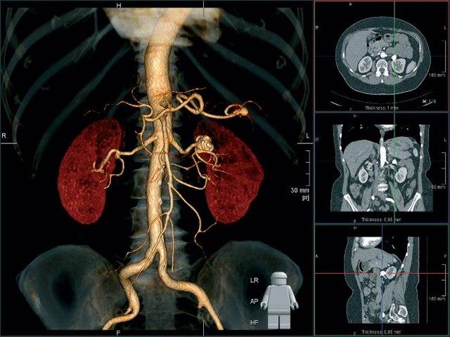 КТ почек с контрастированием и без: причины назначения, подготовка и проведение диагностики, расшифровка результата, вероятные риски
