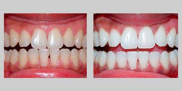 Лазерное отбеливание зубов: плюсы и минусы, отличие от фотоотбеливания