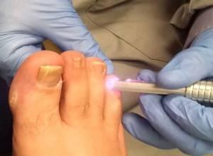 Лечение грибка ногтей лазером при беременности, лекарства
