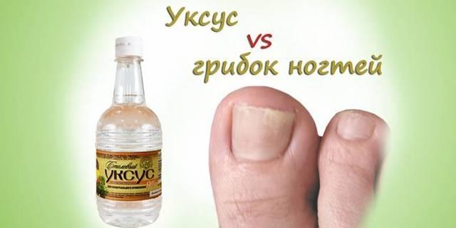 Лечение грибка ногтей на ногах народными средствами: как быстро избавиться