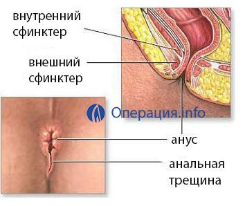 Лечение хронической анальной трещины: причины, симптоматика и лечение осложнений