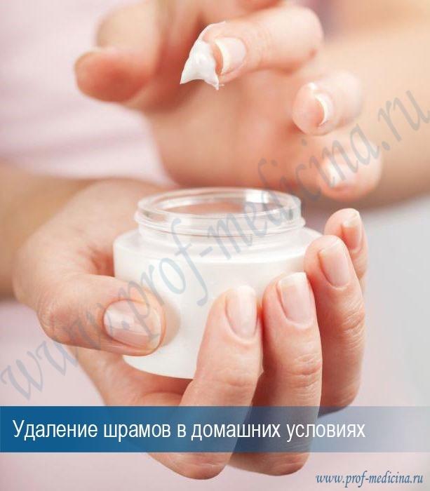 Лечение рубцов: проведение процедур, аптечные и народные средства, профилактические мероприятия