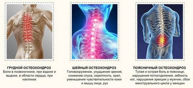 Лечение шейного остеохондроза народными средствами с помощью компрессов, мазей, лечебных ванн