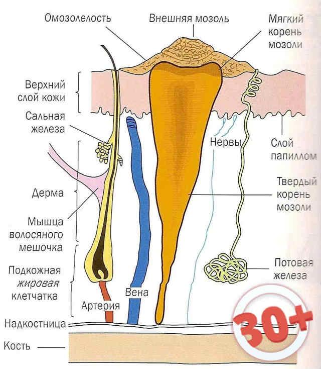 Лечение стержневых мозолей, особенности удаления