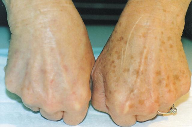 Лентиго: симптомы и лечение, причины развития и профилактика