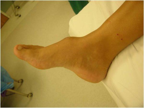 Лейомиосаркома кожи: причины возникновения, типичные признаки, принципы лечения и прогноз