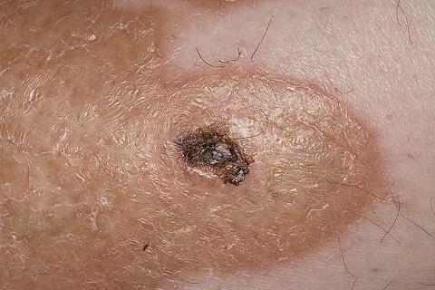 Липоидный некробиоз кожи: факторы риска, клинические проявления, диагностика и принципы лечения