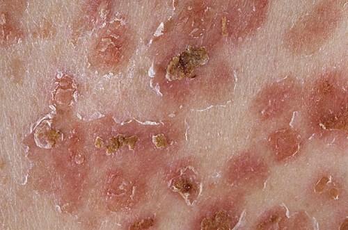 Листовидная пузырчатка: причины развития, характерные признаки заболевания с подробными фото, эффективные методы лечения